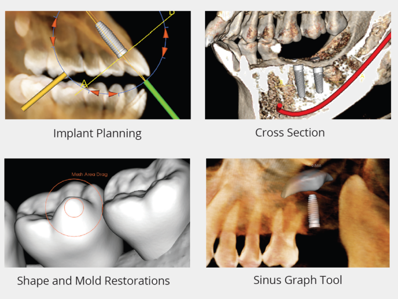 Invivo - Implant planning features SELECTED on grey