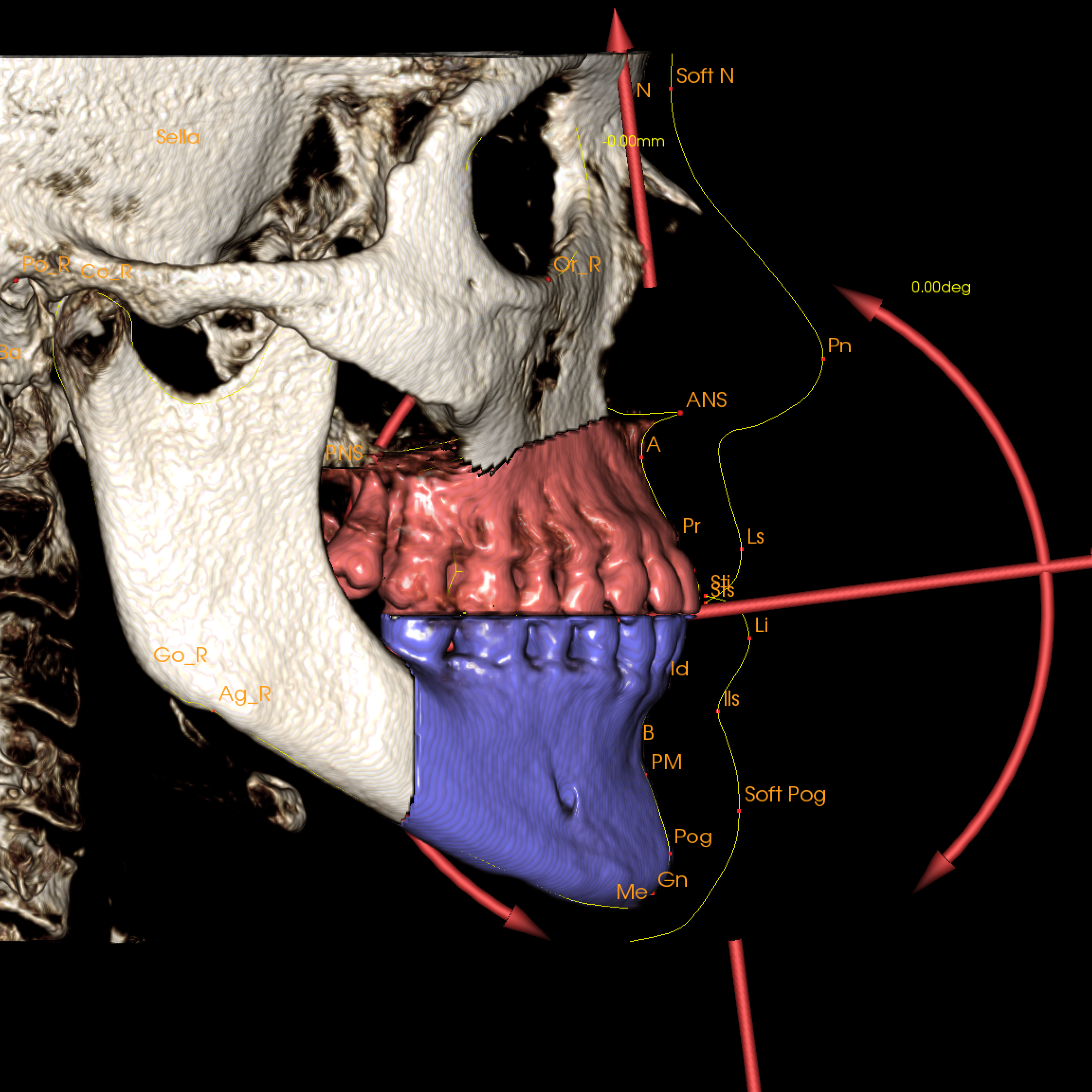 Invivo6 Anatomage