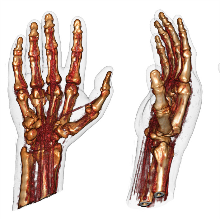 Vascular Surgery | Twin medical