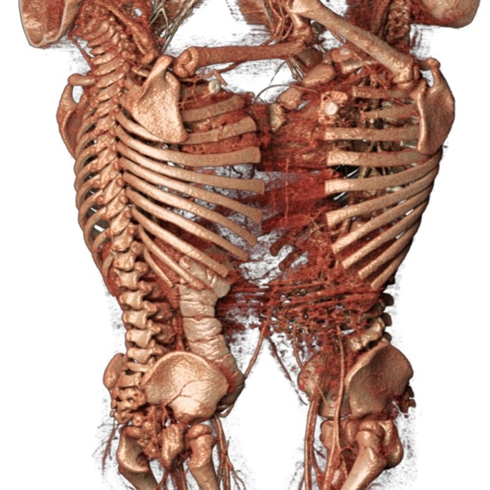 Image Library Anatomage